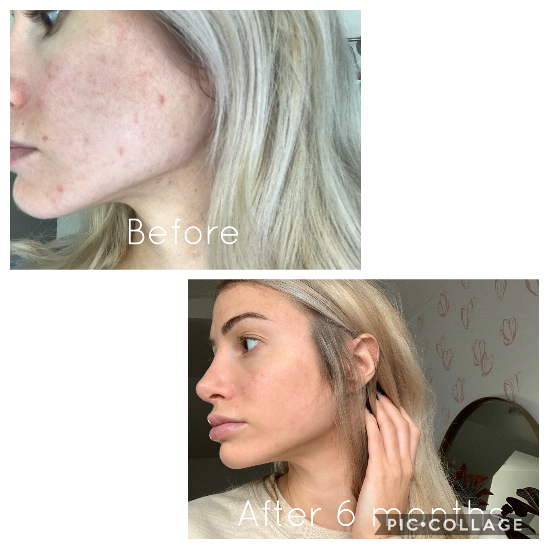 My everyday Skincare Routine with clean beauty products   Acne skincare regimen   Before and After acne skincare pictures